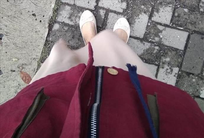 Babet ayakkabılar hangi problemlere yol açıyor?